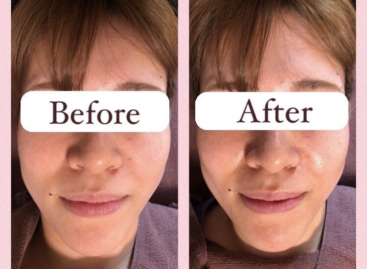 ウルトランスフォーマー施術後の変化(顔)